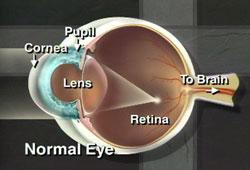 If there is a break or defect in the surface layer of the cornea, a corneal ulcer results