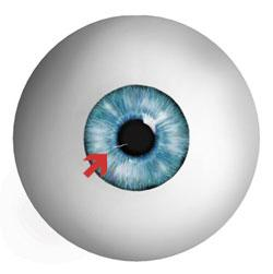A corneal abrasion is simply a scratch in the outer layer of the cornea